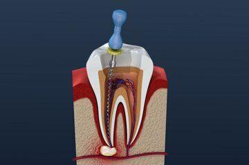 Лечение периодонтита в нашей стоматологии