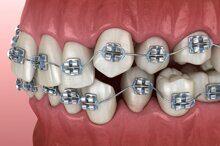 Классические лигатурные брекеты (металлические и эстетические сапфировые)
